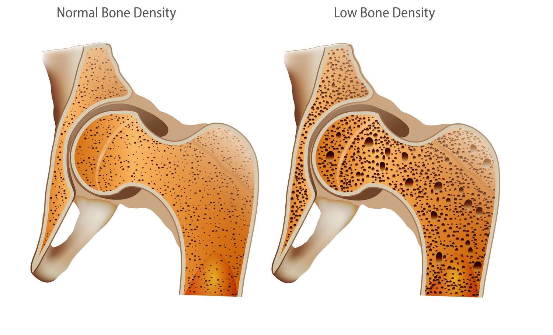 ۰۱۳۶-Children-youth-improve-strengthen-bone-density-mass-NASA